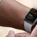 Apple Watch可以帮助追踪心血管衰竭