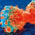 微小的荧光碳点可以使癌症治疗更加安全有效